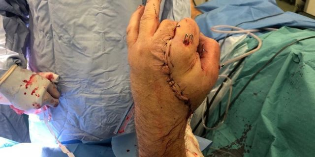 Doctors had to harvest nerve and vein rafts from his foot and forearm but noticed a patch on his palm that was still uncovered.