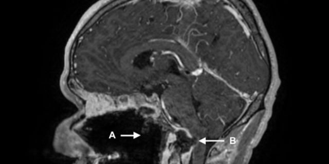 An MRI on his second visit, during which he was hospitalized with a suspected overdose, showed several brain issues in addition to the hole in this throat that was observed on his first visit.